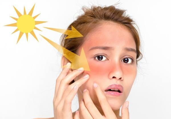 Meminimalkan Efek Burning akibat Sinar Matahari