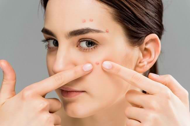 5 Skincare Safi untuk Kulit Berminyak dan Berjerawat Terbaik